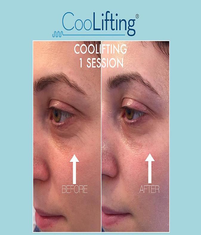 tishara salon tratament corporal facial velashape intraceuticals coolifting thalgo129
