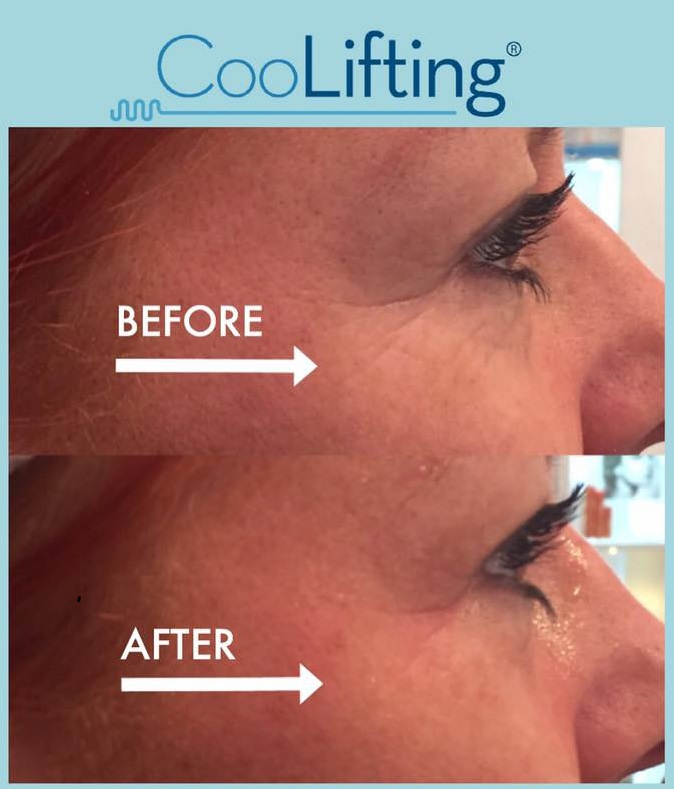tishara salon tratament corporal facial velashape intraceuticals coolifting thalgo130